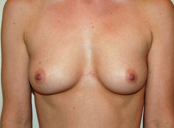 breast augmentation before 280876