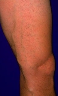 Sclerotherapy  before 370423