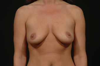Breast Augmentation before 289488