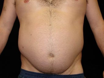 Liposuction of Abdomen, Waist, Flanks, Pecs, and 6 Pack Abdominal Etching before 203543