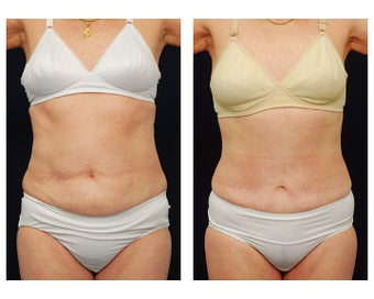 Abdominoplasty - Tummy Tuck before 396167