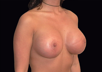 Breast augmentation and vertical mastopexy after 391300