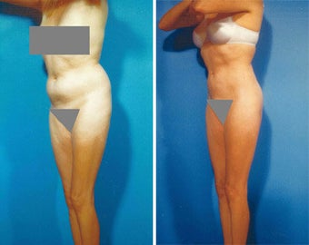 Liposuction before 636121