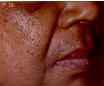 Restylane/Juvederm before 469313