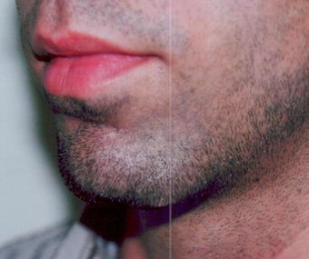 Chin augmentation using prosthesis before 393547