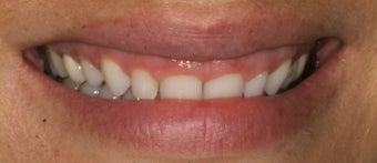 Gum re-contouring and porcelain veneers before 486447
