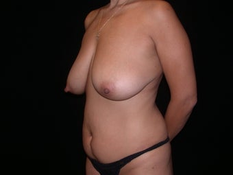 Tummy tuck and breast lift before 197310