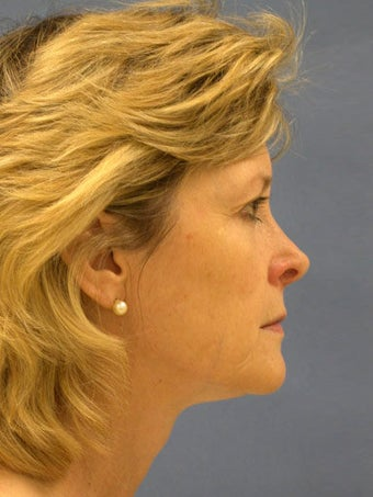 Facelift, Endoscopic Browlift, Upper and Lower Blepharoplasty, Lip Augmentation with Alloderm Grafts before 248834