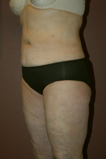 Liposuction after 342256