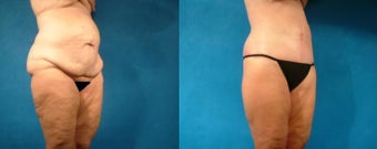 Lower Body Lift and Hernia Repair before 101213