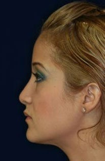 Rhinoplasty and Septoplasty after 223643