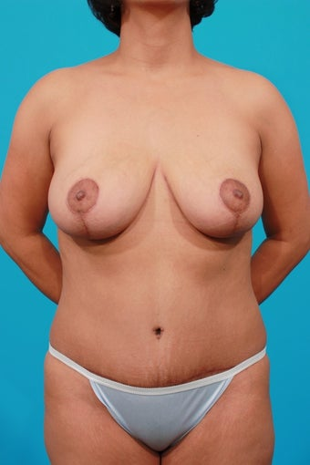 Mommy Makeover: Breast Reduction & Tummy Tuck after 207546