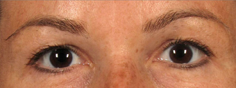 Upper Eyelidplasty with TCA Peel Lower Lids before 420542