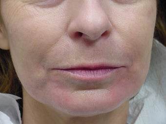 Restylane treatment for marionette lines  after 109751