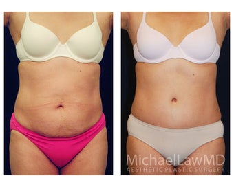 Tummy Tuck with Liposuction before 391605
