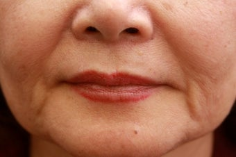 Fill the nasolabial folds and marionette lines before 508924