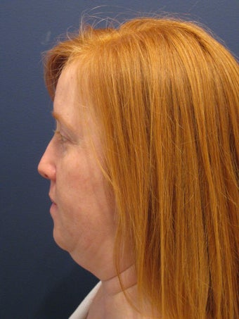 Neck liposuction before 407315