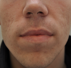 Acne Scarring before 426025