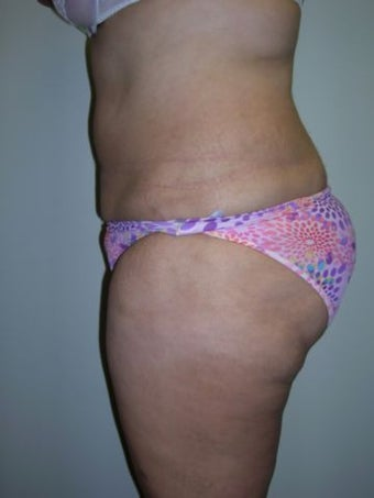 Liposuction after 258663