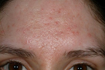 Acne scars before 92029