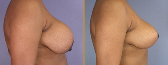 Breast Implant Removal before 270063