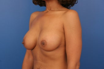 Breast Implants 466403