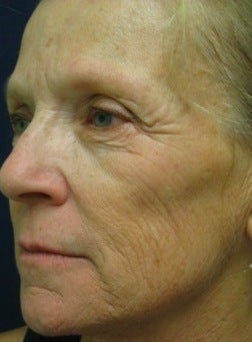 Sculptra Injections before 370555
