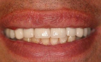 Full Porcelain Crowns after 145680