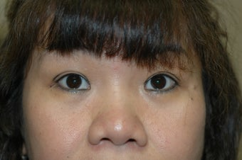 Asian eyelid surgery --  Double lid crease procedure before 341490