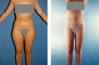 Liposuction before 636164