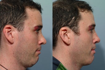 Revision rhinoplasty before 212610