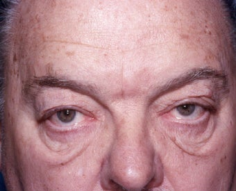 Blepharoplasty before 322229