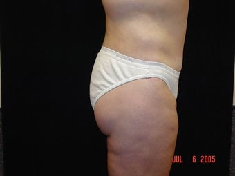 Body Lift with Liposuction of Abdomen, Waist, and Flanks after 203461