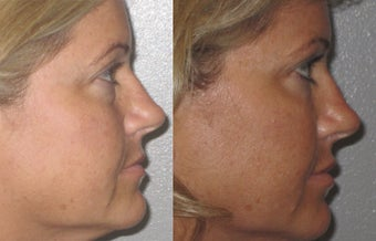 Non-surgical liquid eyelid lift after 353741