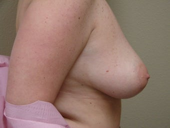 Breast Reconstruction after bilateral nipple sparring mastectomy 344817