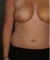 Breast Reduction after 99869