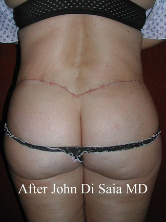 Butt Lift in a prior Tummy Tuck Patient  after 100769