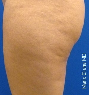 Cellulaze after 582371