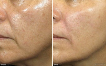 Cheek Augmentation / Cheek Lift before 342418