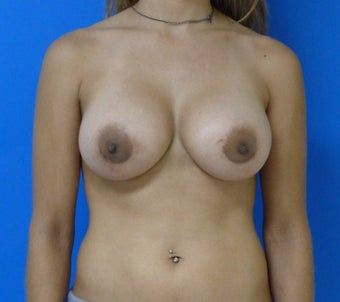 Saline Breast Augmentation after 575183