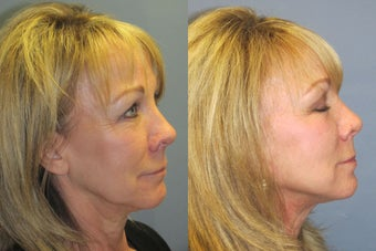 Lite Lift, Liposuction of the neck, blue peel, brow lift after 523492