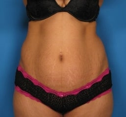 Abdominoplasty before 464717