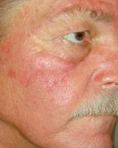 PDT for rosacea before 376139