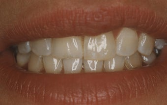 Teeth Whitening before 485396