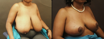 Breast Reduction  after 160572