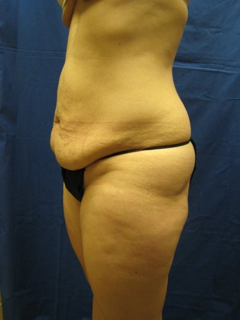 Tummy Tuck and Liposuction Waist 364835