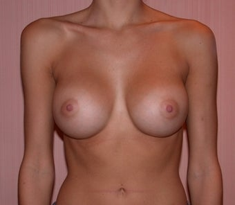 Breast Augmentation after 182879