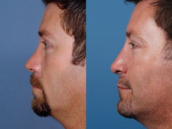 Revision rhinoplasty after 355697