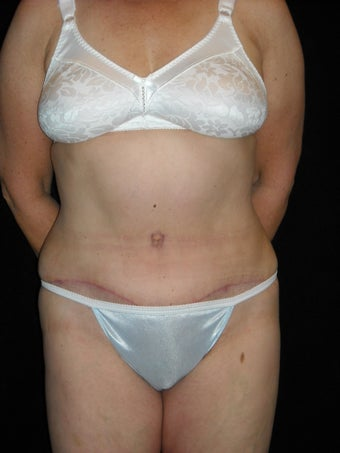 Abdominoplasty after 420080