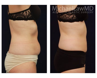 Liposuction 495523